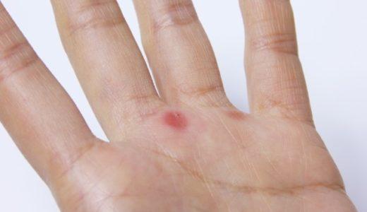 血豆ができたときに潰すのはダメ!正しい対処法や日常で心がける注意点