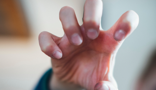 爪をむしる癖・いじる癖の原因や心理 | 確実に直す治療法や改善方法
